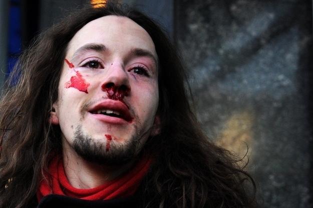 Russian LGBT protester (Getty photo via Buzzfeed)
