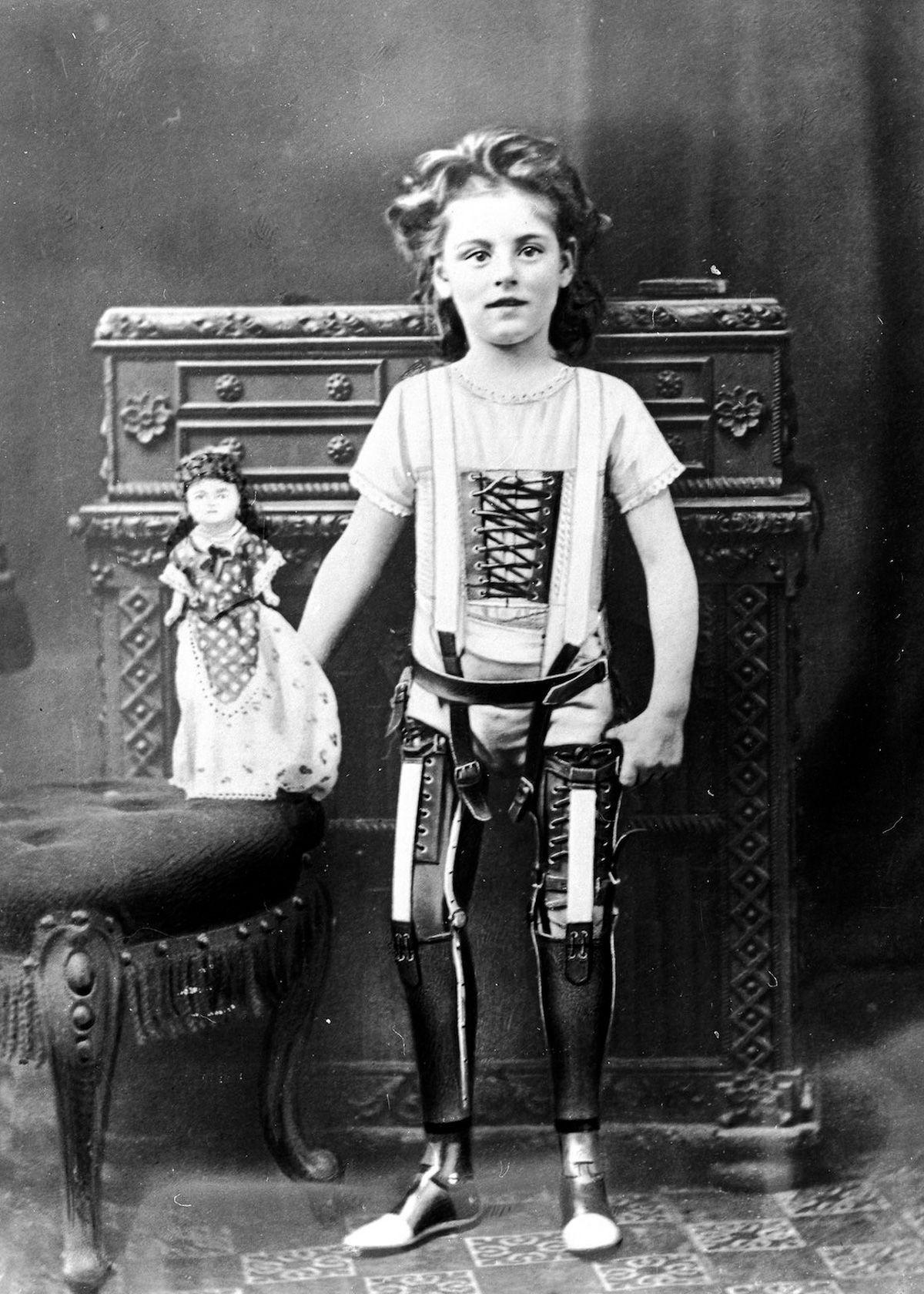 Young girl wearing prosthetic legs Chard England 1890 1910… – History