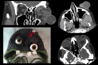 halloween sign radiology