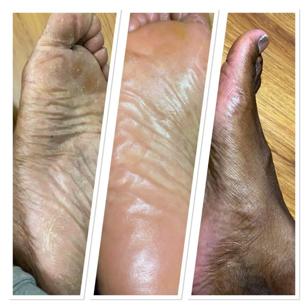 Foot cream before and after