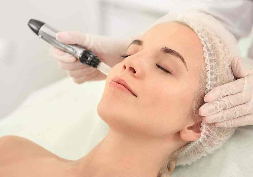 Dermapen Microneedling – What is It and How Does It Work? dermapen microneedling
