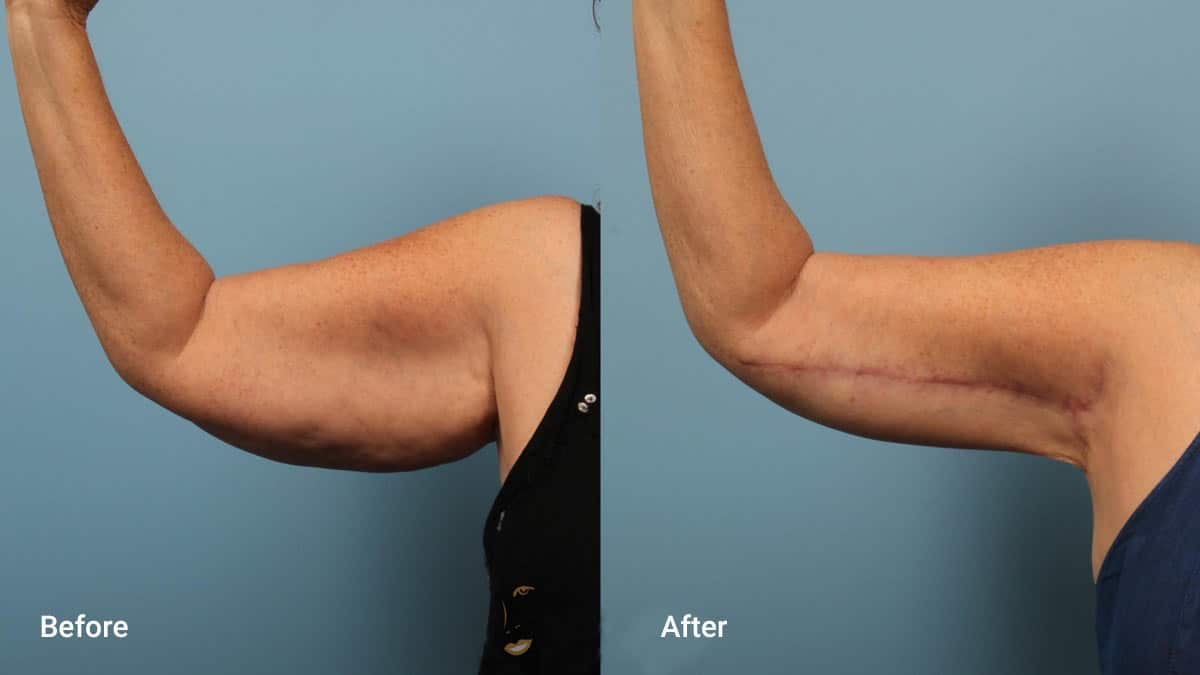 non surgical arm lift Using Threads for Arm Lifting Non Surgical Brachioplasty
