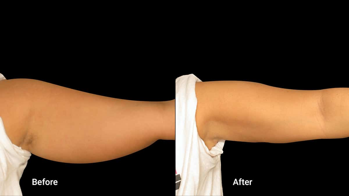 non surgical arm lift Using Threads for Arm Lifting What the Benefits of Arm Lifting