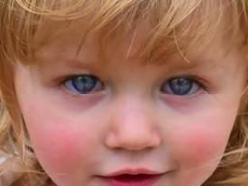 pink cheek.jpg