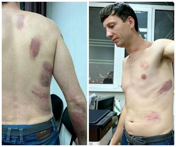 «Живи смирно»: в Казани избили экоактивиста