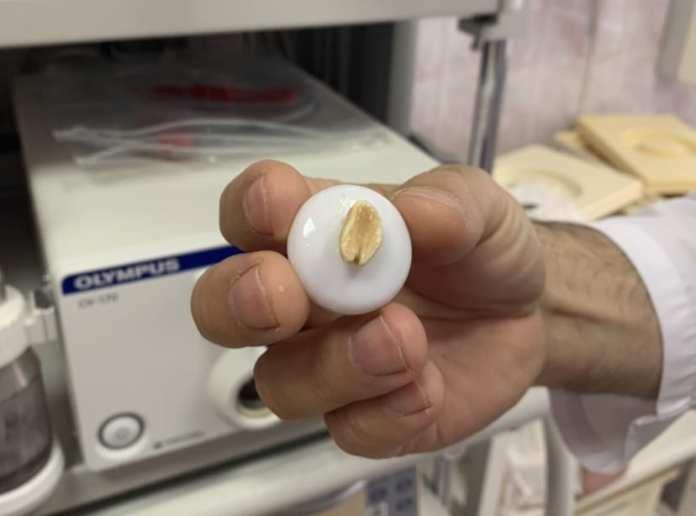 В Рязани врачи извлекли из бронхов ребёнка орех, который находился там больше месяца