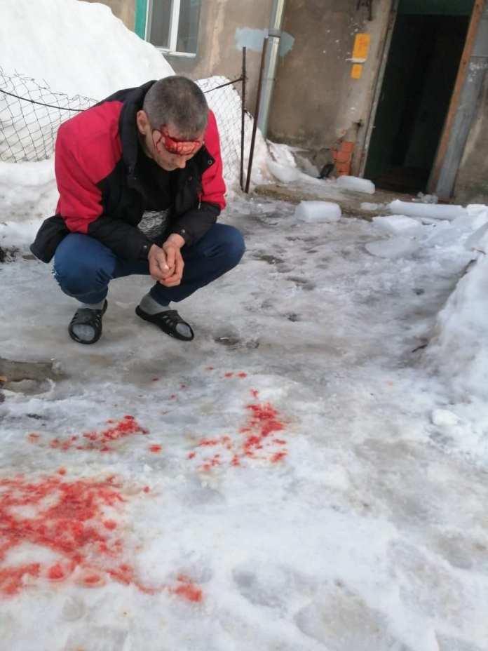 На окраине Рязани упавшая с крыши глыба льда разбила голову мужчине