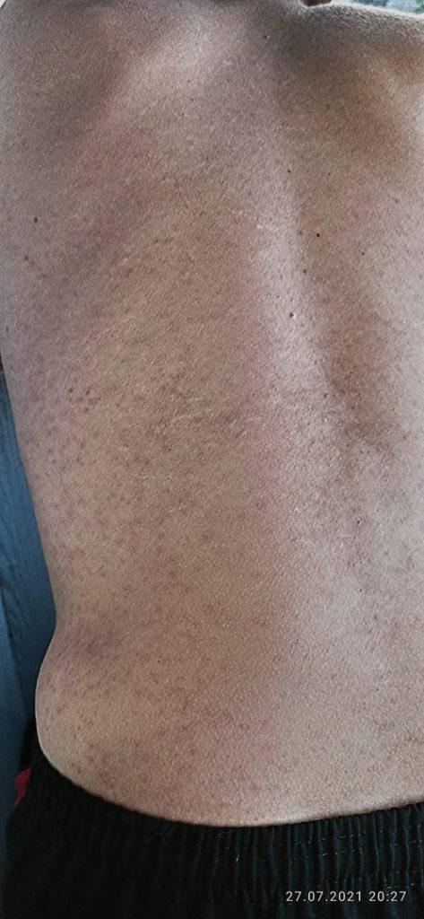 После купания на борковском карьере рязанцы пожаловались на сыпь