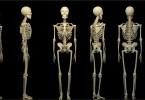 Скелет человека уникален!