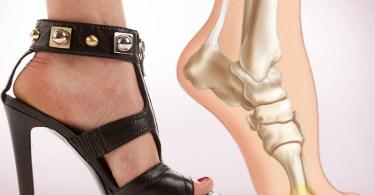 Обувь на высоком каблуке провоцирует серьёзные заболевания