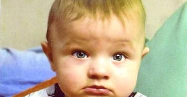 Врождённый порок почек: операция не потребовалась