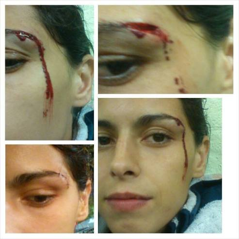 Juliana Rosa vs Leonie Macks - King Narsuwan show - bloodied cut