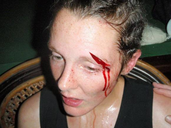 Kristie Ryder - Muay Thai bloodied face - Women's War Face