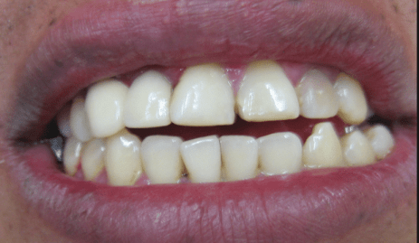 internal tooth staining