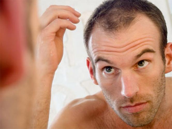 Existen diversos tipos de pérdida de cabello, algunos están relacionados con padecimientos crónicos, otros por herencia familiar.