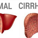 Intensive Program Prevents COVID-19 in Patients With Decompensated Cirrhosis