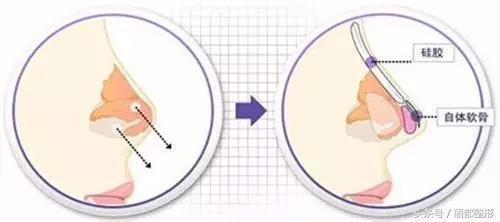 隆鼻和鼻綜合哪個適合你? - 9900 健康醫療頻道