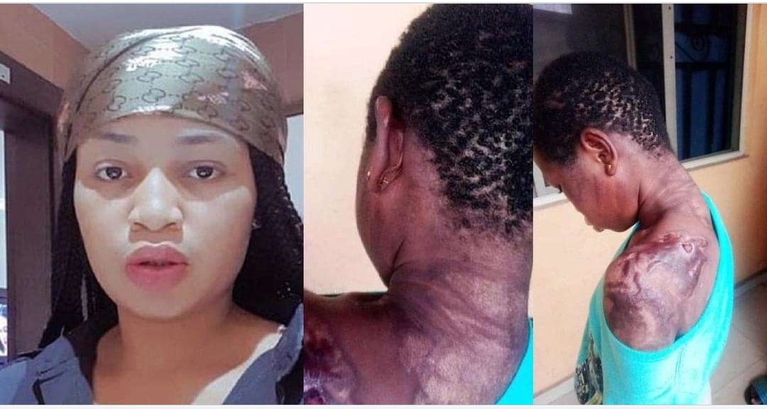 Police arrest lady for dousing 10-year-old maid with hot water mixed with pepper for breaking a plate. (Graphic Photos)