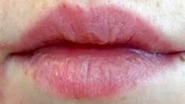 lip-hypoesthesia-treat