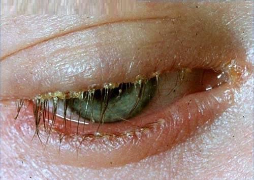 blepharitis-common-signs-symptoms