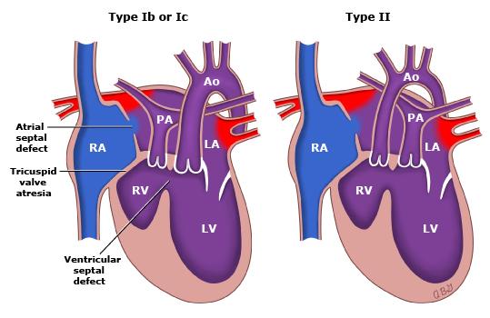 forms-tricuspid-atresia