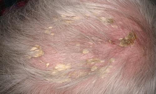 know-seborrheic-dermatitis