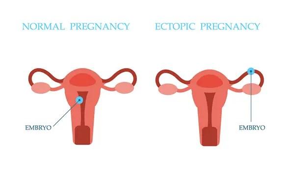 مشكلة الحمل خارج الرحم وكيفية علاجها؟