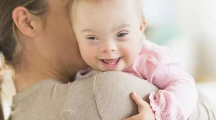 متلازمة تيرنر للأطفال ...الأسباب والعلاج وخطورتها على الإناث