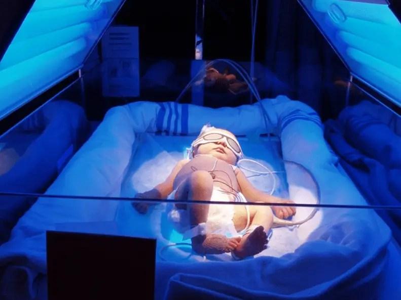 مرض اليرقان للأطفال حديثي الولادة أسبابه وطرق العلاج