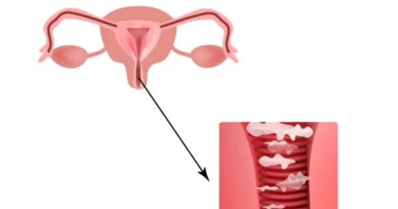 الالتهابات المهبلية وأسباب تجعلكِ أكثر عرضة للإصابة (4)