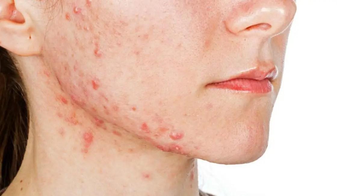 التغيرات الجلدية التي تظهر أثناء فترة الحمل وتأثيراتها