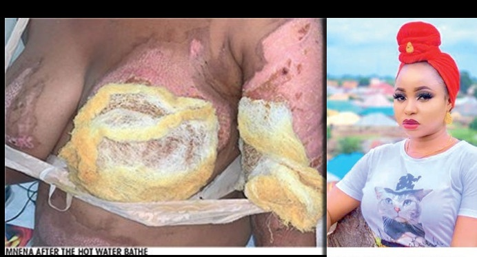Married Woman 'Bathes' Husband's Sidechick With Hot Water, Destroys Her Breasts To Teach Her A Lesson - Before and After