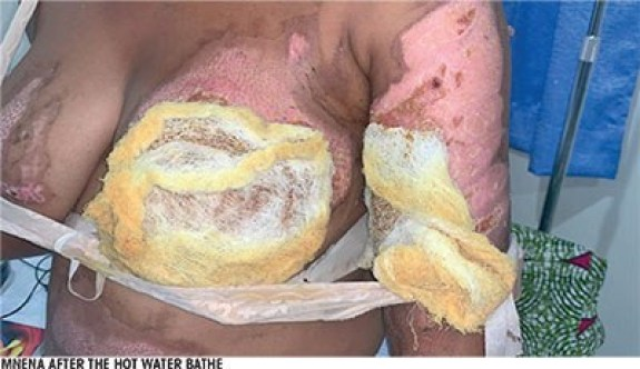 Married Woman 'Bathes' Husband's Sidechick With Hot Water, Destroys Her Breasts To Teach Her A Lesson