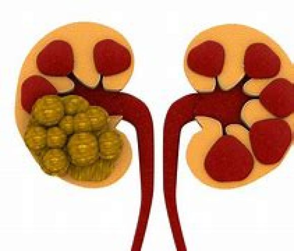 This image has an empty alt attribute; its file name is CBD-OIL-REMEDIES-FOR-KIDNEY-STONES-3.jpg