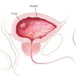 bladder cancer causes