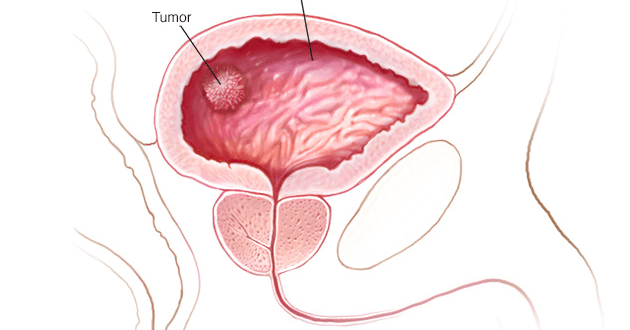 Bladder cancer causes – what is that, symptoms and why it occurs?