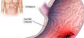 Stomach cancer causes – what is that? Definitions and knowing about it