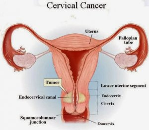 causes of cervical cancer