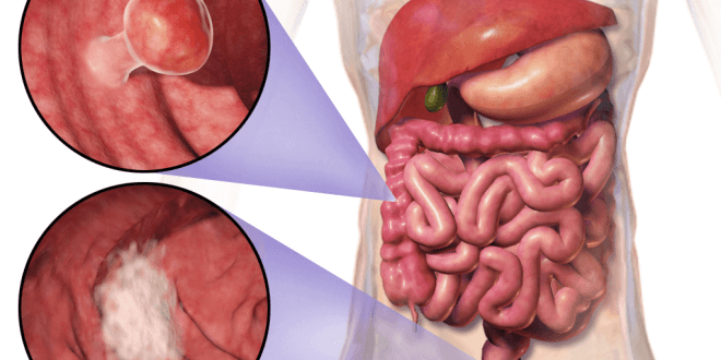 Colon Cancer & Colorectal Cancer – Stages – Signs – and Symptoms