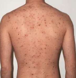 Skin Cancer Causes