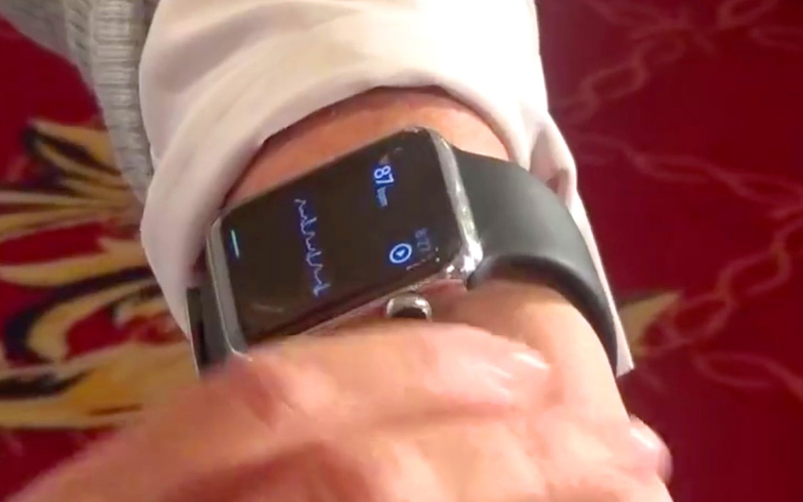 AliveCor shows Apple Watch ultrasonic ECG heart monitoring wrist band, plans 2016 launch