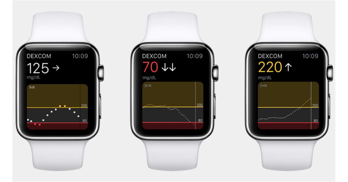 photo of Apple Watch blood sugar measurement coming in Series 7, claims report image