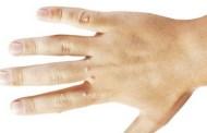 Narodna receptura za liječenje bradavica