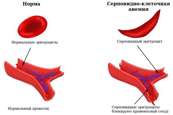 cum să pierdeți în greutate rapid cu anemia