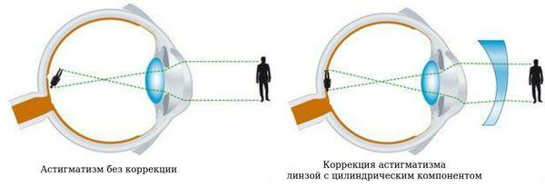amint azt a hyperopiával járó asztigmatizmus látja látásvesztés szemüveg