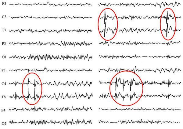 Пример данных ЭЭГ: красными кругами выделены зоны патологической эпилептиформной активности