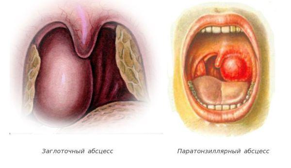 Абсцесс (қалпақ және паратронзиллар)