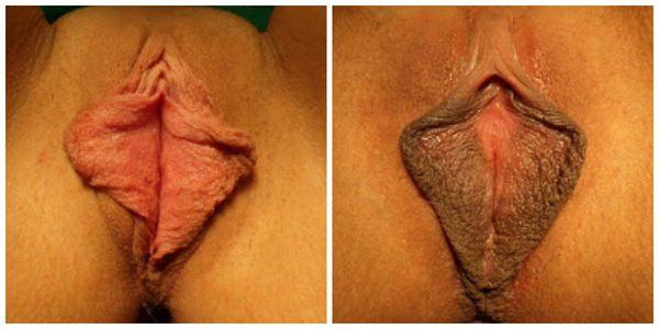 Гипертрофия малых половых губ. Пигментация.