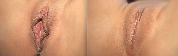 Лабиопластика: до и после