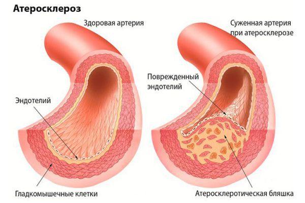 Лимпидемиялық емдеу